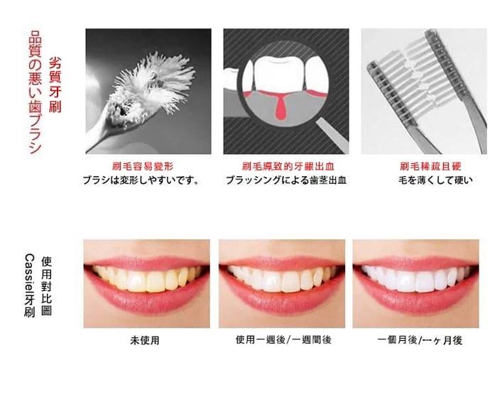 【小魚家居】日本熱銷20000+超柔級萬毛牙刷 4